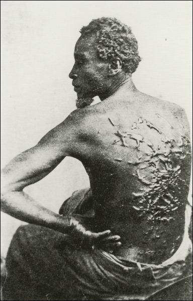slave-whip scars